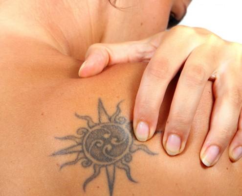elimnacion-de-tatuajes2