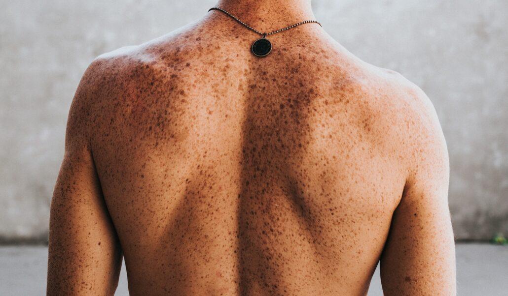 Una revisión al año en el dermatólogo puede evitar el cáncer de piel. Consulte al Doctor Mosquera en Fleboláser.