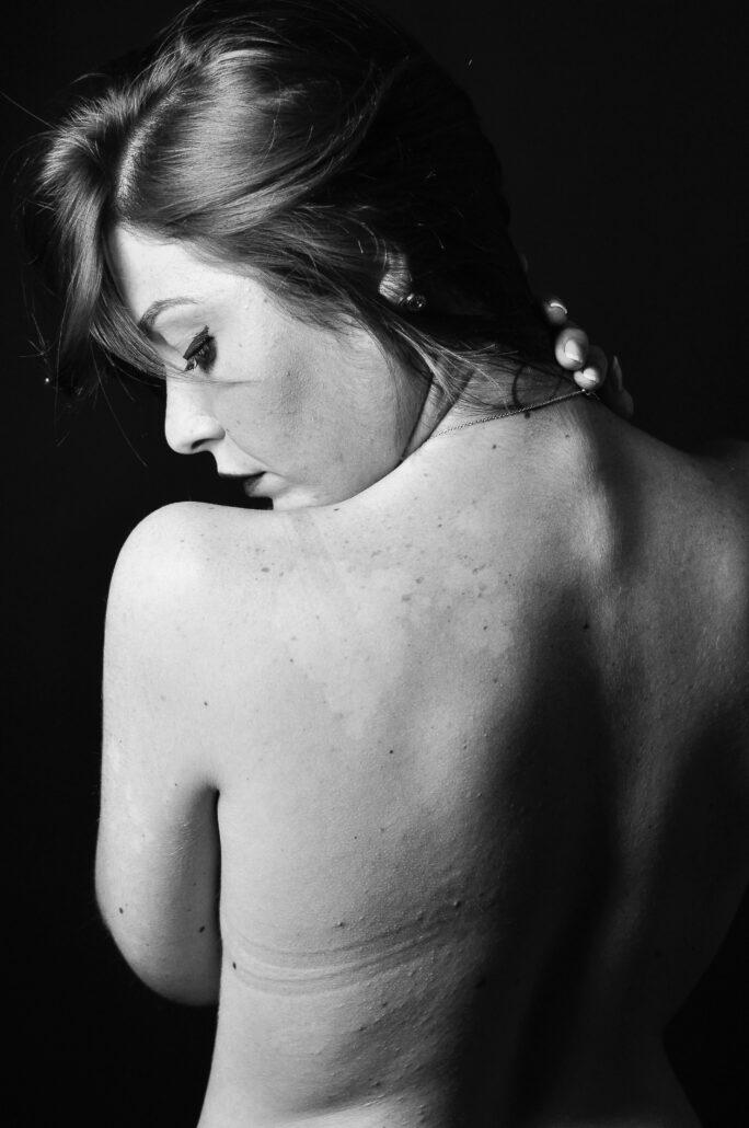 Mujer preocupada por flacidez en la piel