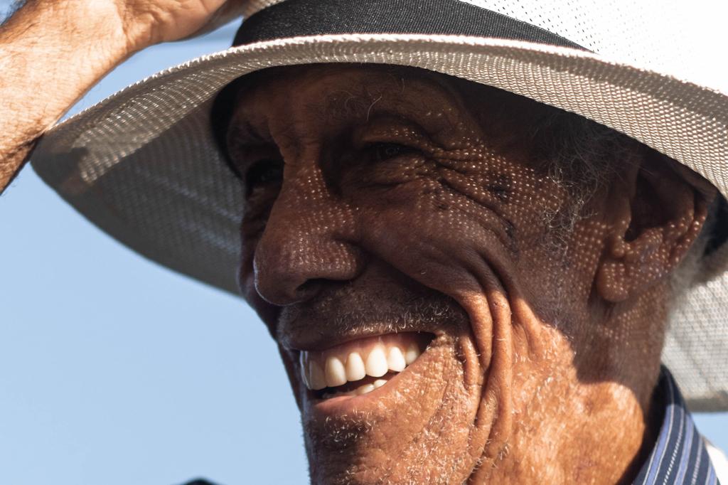 Tratamiento y prevención de quemadura solar en A Coruña